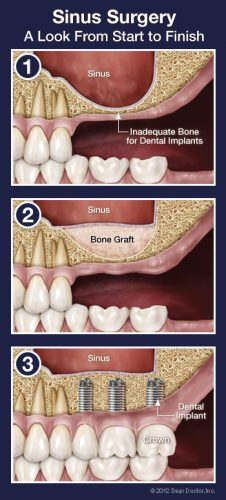 Oral Surgery - Family Dentist